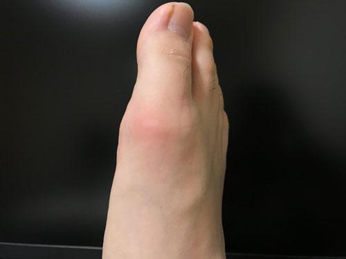 痛風で炎症を起こした僕の足